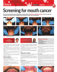 Screening for Mouth Cancer
