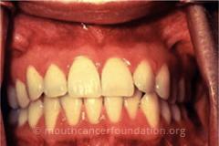 Intra-Oral Examination