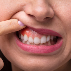 Lumps and swellings of no obvious cause in the mouth or neck