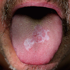 Moles and spots that get bigger, become hard or start to bleed